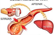 Способы снижения холестерина в крови: лекарственные препараты, народные средства и правильное питание