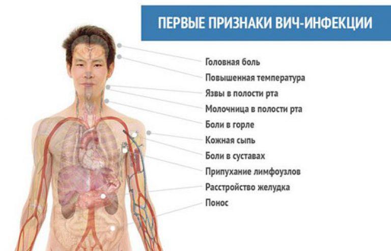 Симптомы заболевания вич у женщин