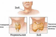 Почему и как болит щитовидная железа: симптомы, причины, современные препараты и лечение в домашних условиях?